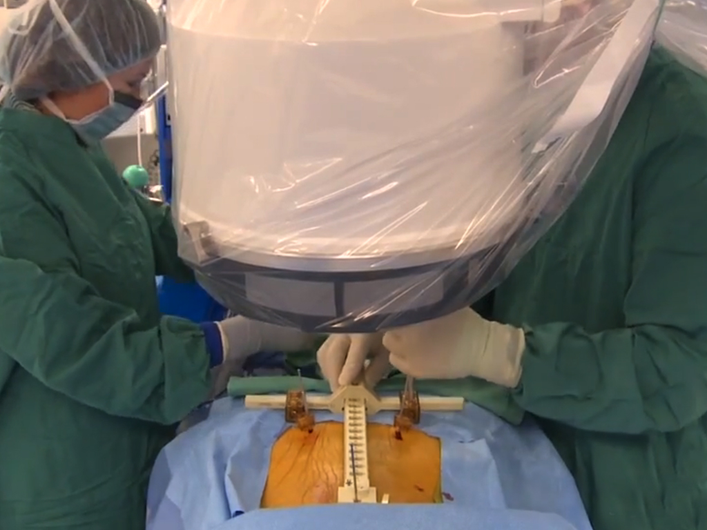 Advanced Surgical Treatments For Spine Injuries Attorneys And Their Clients Should Be Aware Of
